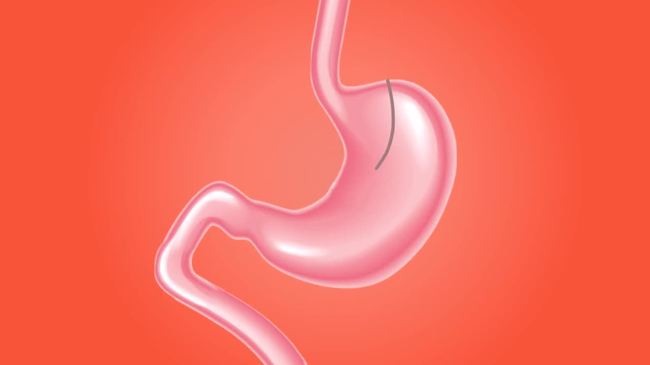 Mini gastric bypass surgery stomach medical care