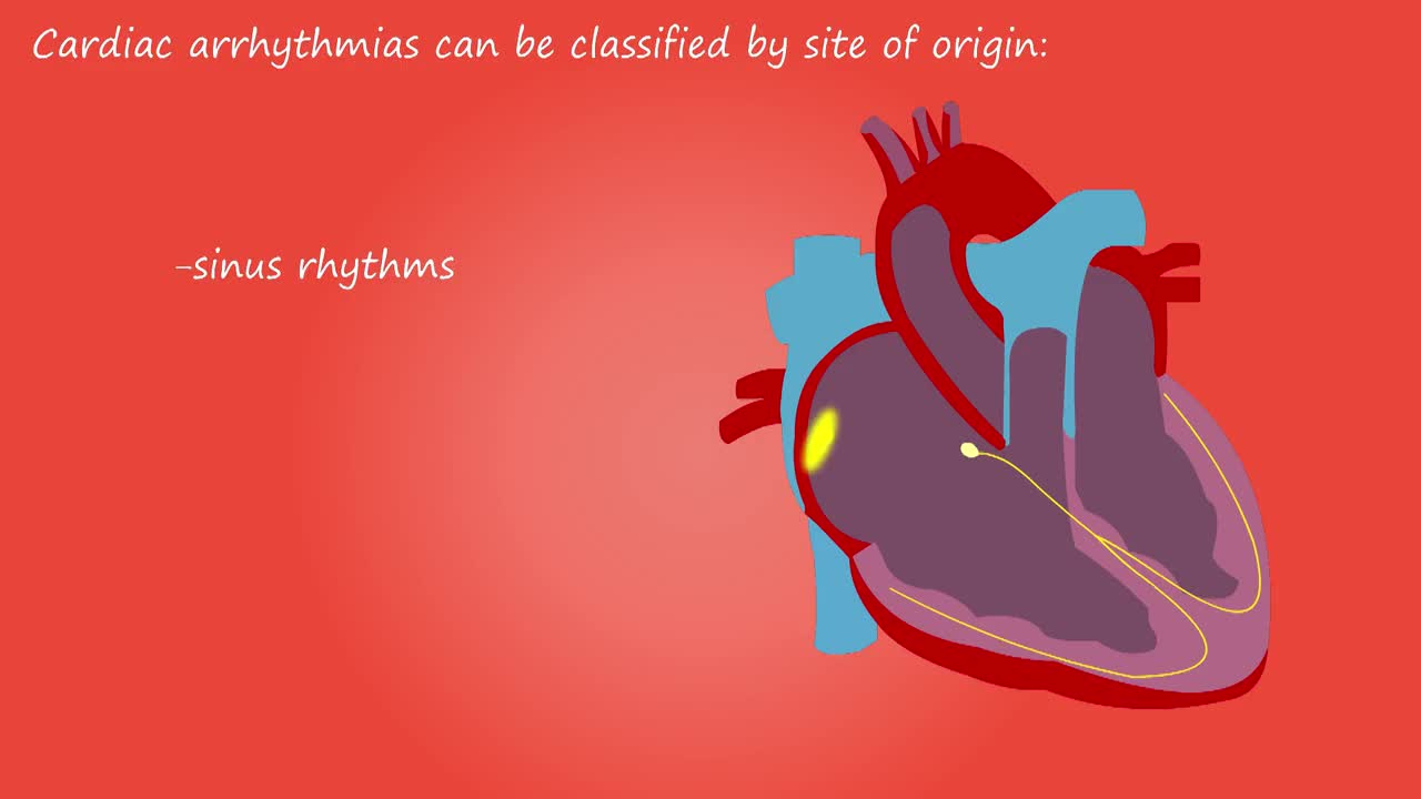 Cardiac arrhythmia heart rhythm medical