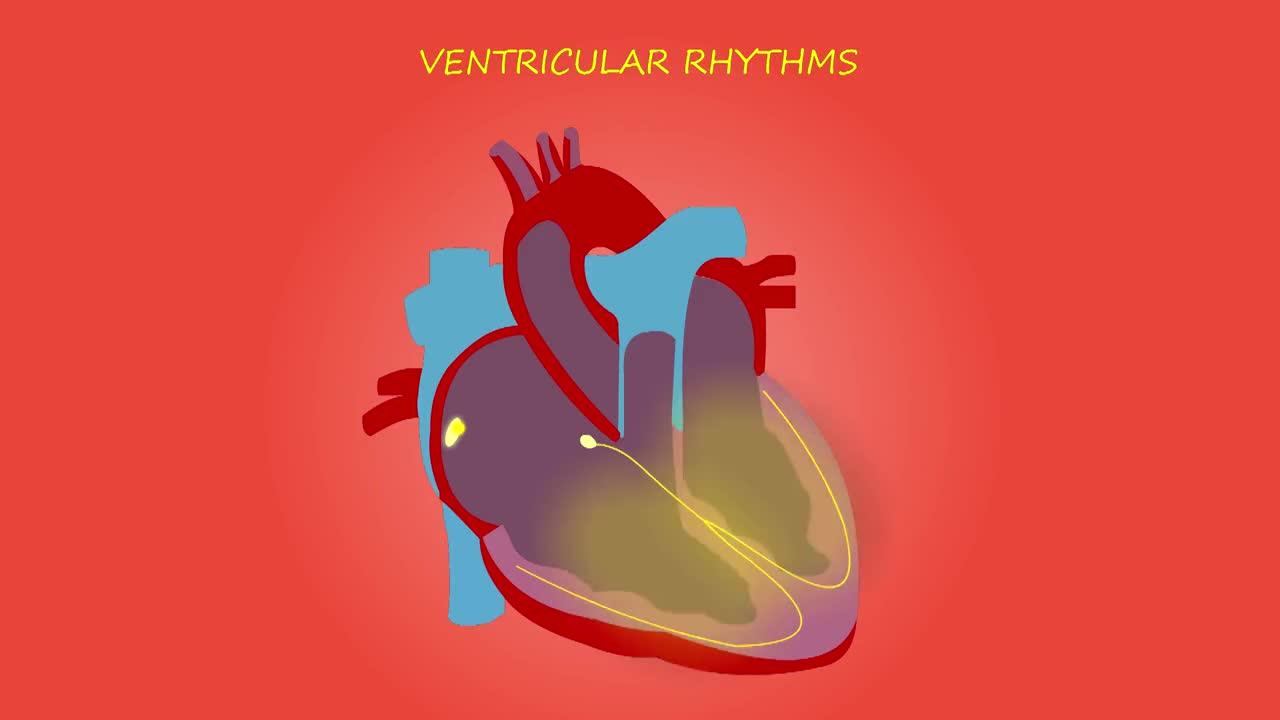 Cardiac arrhythmia narrated medical heart